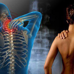 Sistema de Vigilancia Epidemiológico Osteomuscular